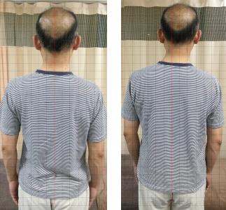 腰痛・腰椎すべり症(40代・男性)