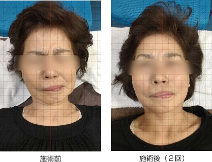 顔面神経麻痺(60代、女性)